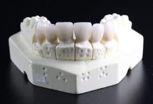 DIY False Tooth – Tips and Tricks