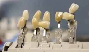 temporary tooth repair